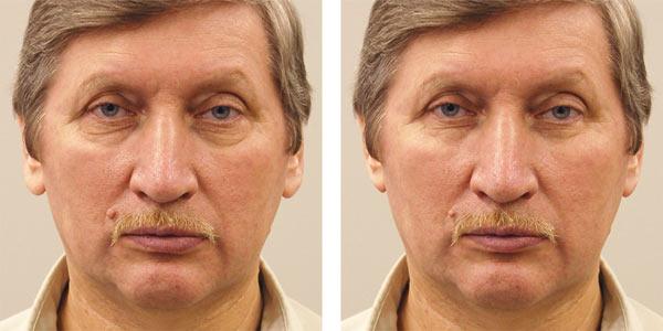 Рис. 21. Исходный портрет мужчины (а) и результат его коррекции фильтром Пластика (б)